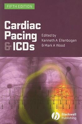 Cardiac Pacing and ICDs 9781405163507