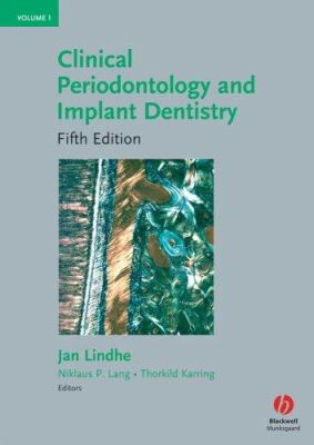 Clinical Periodontology and Implant Dentistry, 2 Volumes 9781405160995
