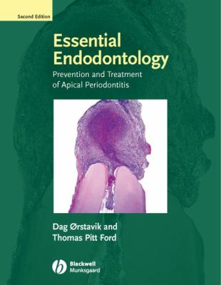 Essential Endodontology: Prevention and Treatment of Apical Periodontitis 9781405149761