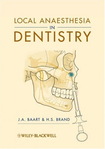 Local Anaesthesia in Dentistry 9781405184366