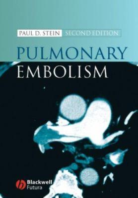 Pulmonary Embolism 9781405138079