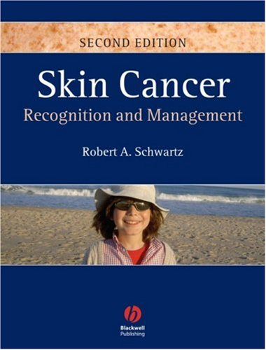 Skin Cancer: Recognition and Management 9781405159616