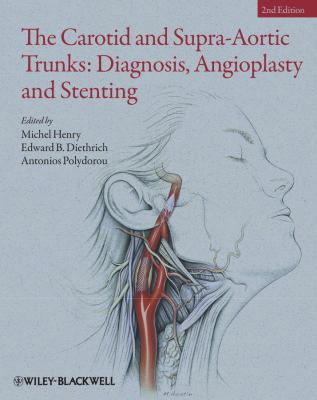 The Carotid and Supra-Aortic Trunks: Diagnosis, Angioplasty and Stenting 9781405198547