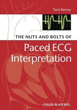 The Nuts and Bolts of Paced ECG Interpretation 9781405184045