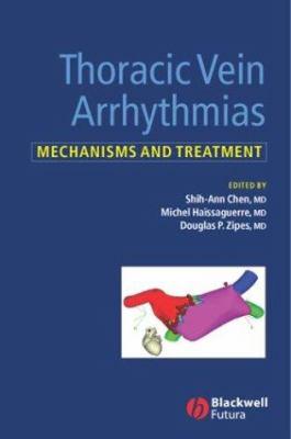 Thoracic Vein Arrhythmias: Mechanisms and Treatment 9781405118880