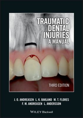 Traumatic Dental Injuries: A Manual [With DVD ROM] 9781405190619