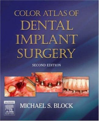 Color Atlas of Dental Implant Surgery 9781416035947