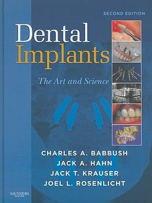 Dental Implants: The Art and Science 9781416053415