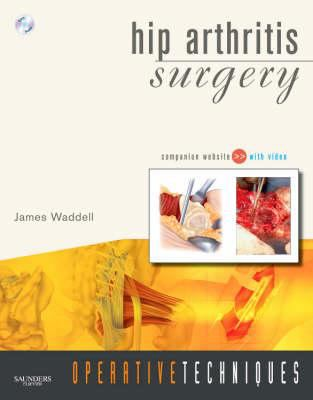 Hip Arthritis Surgery [With DVD and Free Web Access] 9781416038504