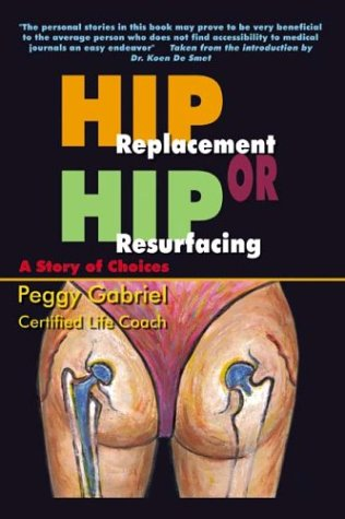 Hip Replacement or Hip Resurfacing: A Story of Choices 9781410765659
