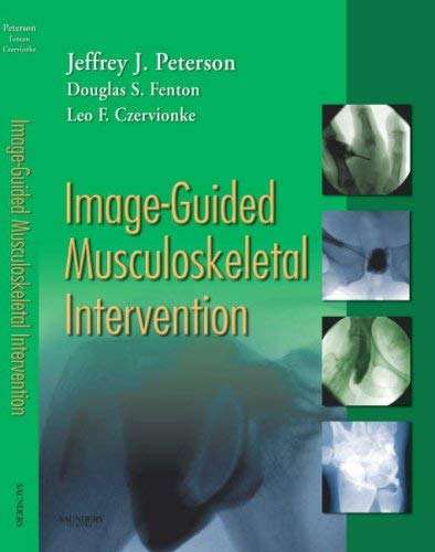 Image-Guided Musculoskeletal Intervention 9781416029052