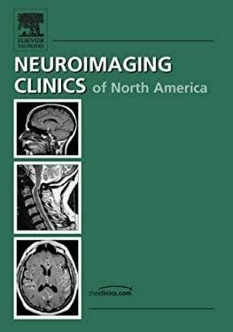 Intracranial Aneurysms, an Issue of Neuroimaging Clinics 9781416038924