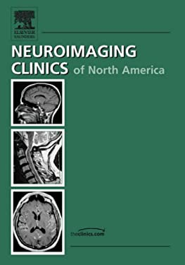Neuroimaging Clinics of North America, Volume 17: Angioplasty and Stenting for Artherosclerotic Cerebrovascular Disease, Number 3 9781416043362