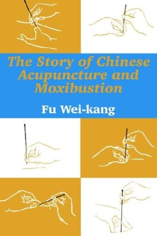 The Story of Chinese Acupuncture and Moxibustion 9781410206138