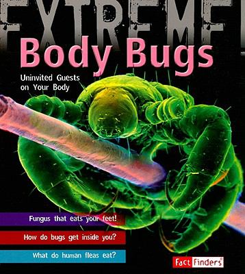 Body Bugs: Uninvited Guests on Your Body 9781429631327