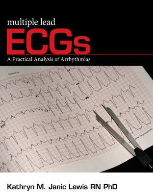 Multiple Lead ECGs: A Practical Analysis of Arrhythmias 9781435441248
