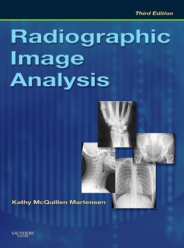 Radiographic Image Analysis 9781437703368