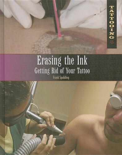 Erasing the Ink: Getting Rid of Your Tattoo 9781448846153