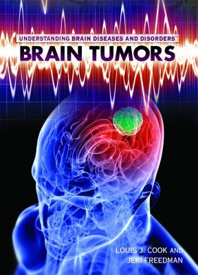 Brain Tumors 9781448855445