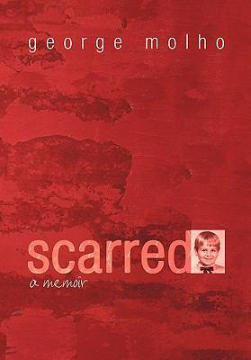 Scarred: A Memoir 9781440195136