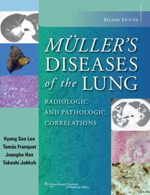 Muller's Diseases of the Lung: Radiologic and Pathologic Correlations 9781451111163