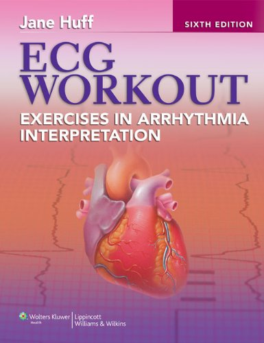 ECG Workout: Exercises in Arrhythmia Interpretation [With Access Code] 9781451115536