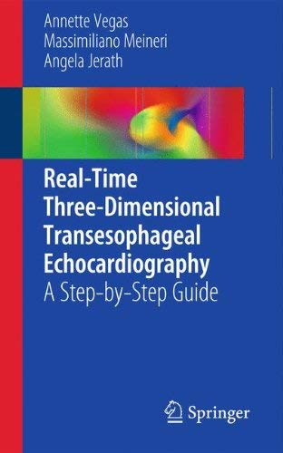 Real-Time Three-Dimensional Transesophageal Echocardiography: A Step-By-Step Guide 9781461406648