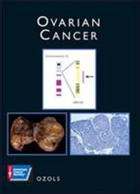 Ovarian Cancer: American Cancer Society Atlas of Clinical Oncology [With CDROM] 9781550090963