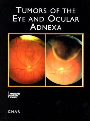 American Cancer Society Atlas of Clinical Oncology: Tumors of the Eye and Ocular Adnexa (Book with CD-ROM) [With CDROM] 9781550091441