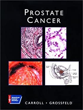 American Cancer Society Atlas of Clinical Oncology: Prostate Cancer (Book with CD-ROM) 9781550091304
