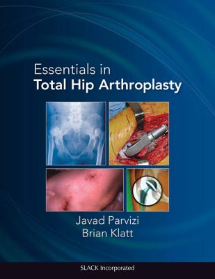 Essentials in Total Hip Arthroplasty 9781556428708