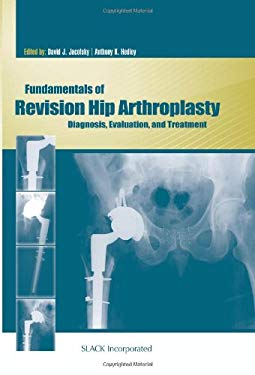 Fundamentals of Revision Hip Arthroplasty: Diagnosis, Evaluation, and Treatment 9781556429521
