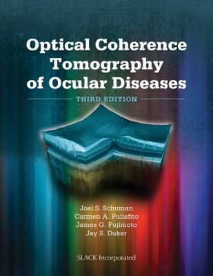 Optical Coherence Tomography of Ocular Diseases 9781556428647