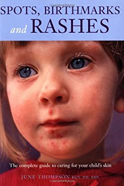 Spots, Birthmarks and Rashes: The Complete Guide to Caring for Your Child's Skin 9781552976814