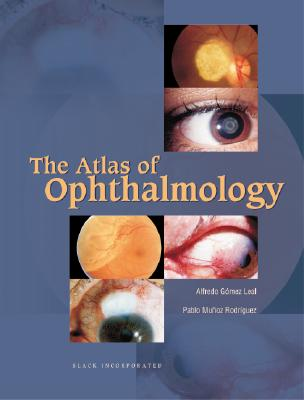 The Atlas of Ophthalmology 9781556425745