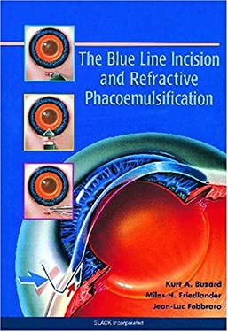 The Blue Line Incision and Refractive Phacoemulsification 9781556424816