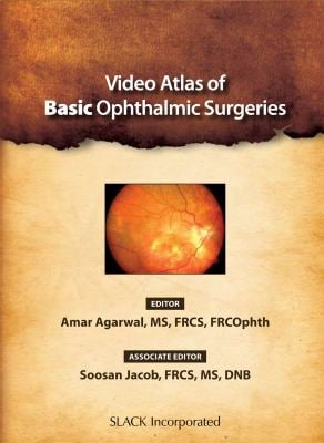 Video Atlas of Basic Ophthalmic Surgeries 9781556428777