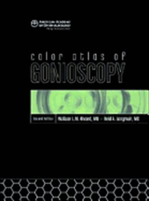 Color Atlas of Gonioscopy 9781560558965