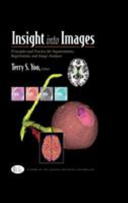Insight Into Images: Principles and Practice for Segmentation, Registration, and Image Analysis 9781568812175