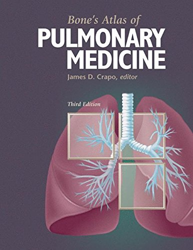 Bone's Atlas of Pulmonary Medicine 9781573402118