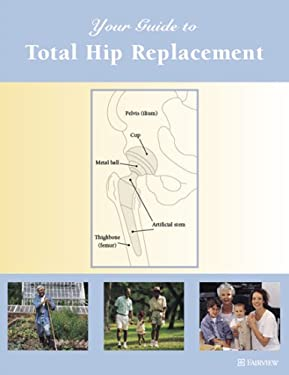 Your Guide to Total Hip Replacement 9781577491644