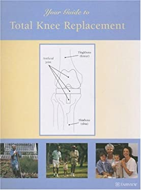Your Guide to Total Knee Replacement 9781577491651