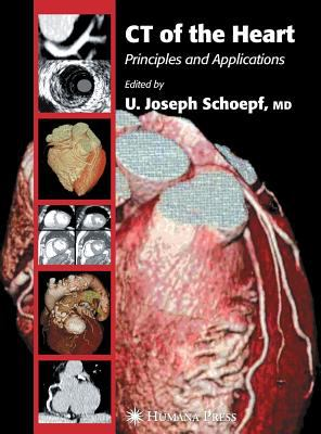 CT of the Heart: Principles and Applications 9781588293039