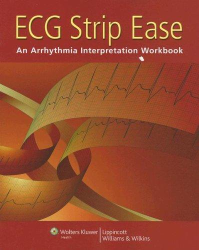 ECG Strip Ease 9781582555584