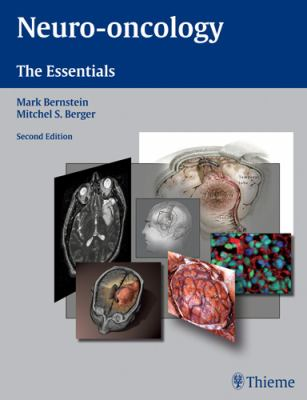 Neuro-Oncology: The Essentials 9781588904973