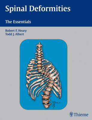 Spinal Deformities: The Essentials 9781588903419