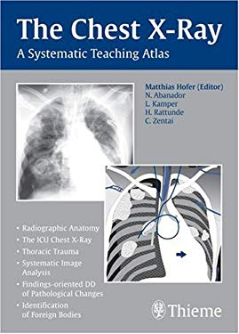 The Chest X-Ray: A Systematic Teaching Atlas 9781588905543