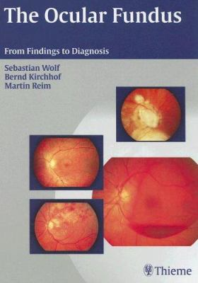 The Ocular Fundus: From Findings to Diagnosis 9781588903389