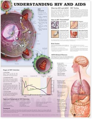 Understanding HIV and AIDS Anatomical Chart in Spanish (Entendiendo Que Son El Vih y El Sida) 9781587799945