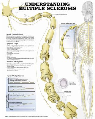 Understanding Multiple Sclerosis Anatomical Chart Anatomical Chart Company